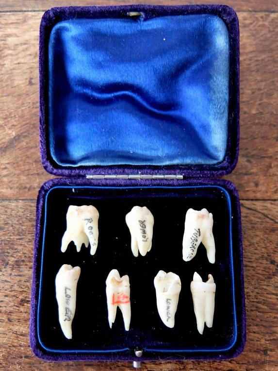 Teeth Specimens (A0417)