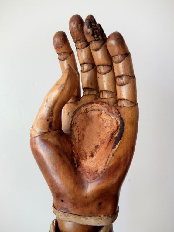 Prosthetic Hand (A1216)